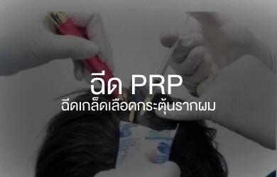 ฉีดเกล็ดเลือด PRP